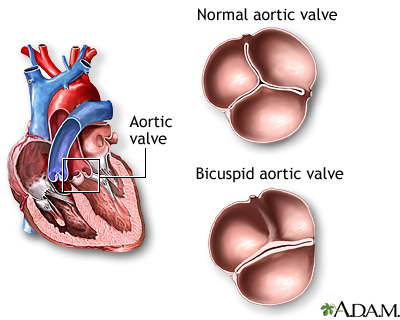 Aortic stenosis in young adults
